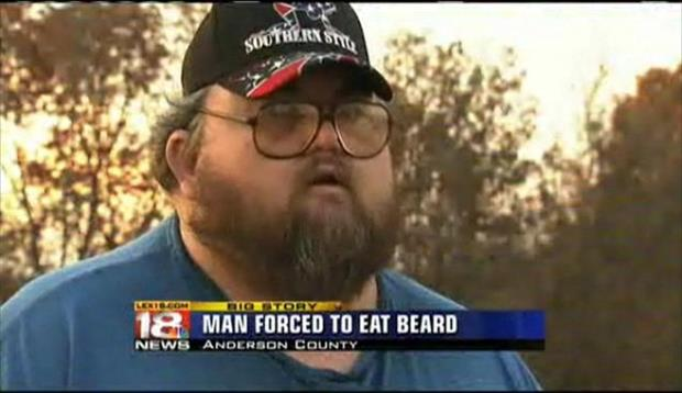 """Man forced to eat beard"""