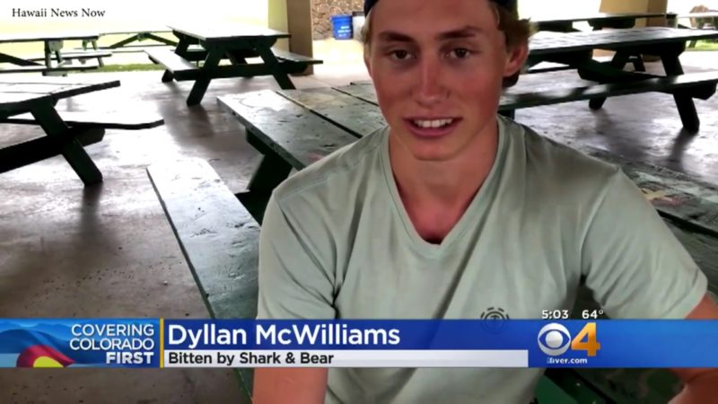 Dyllan McWilliams: Bitten By Shark and Bear