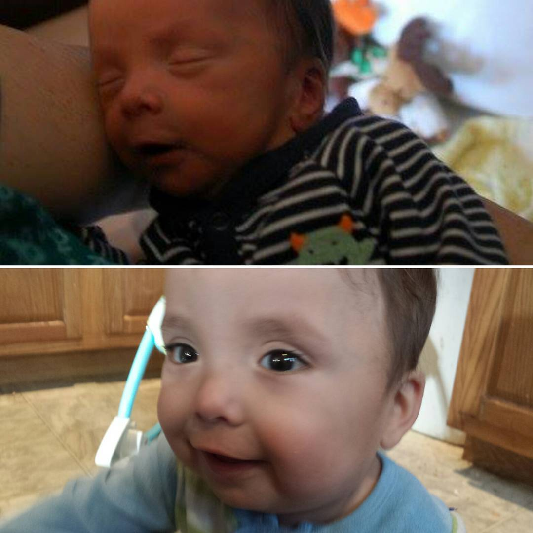 Pictures of the boy as a newborn and as a one year old, respectively