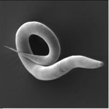 Electron micrograph of Caenorhabditis elegans. (Photo by Antje Thomas, Schulenburg Lab, Kiel via Wikicommons/Creative Commons https://commons.wikimedia.org/wiki/File:Electron_micrograph_of_%27%27Caenorhabditis_elegans%27%27.jpg)